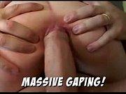 massive anal gape
